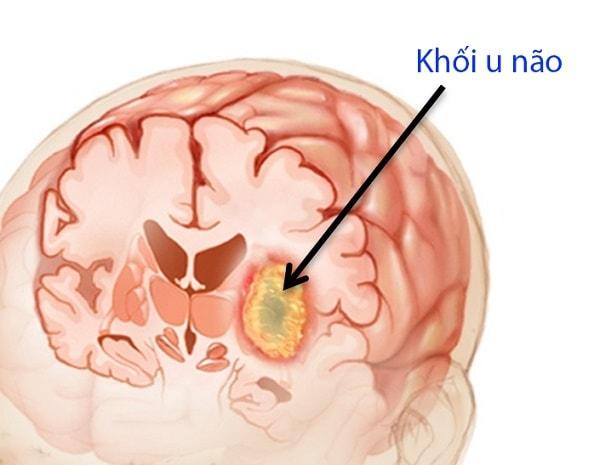 Bệnh u não là gì, có chữa được không 1