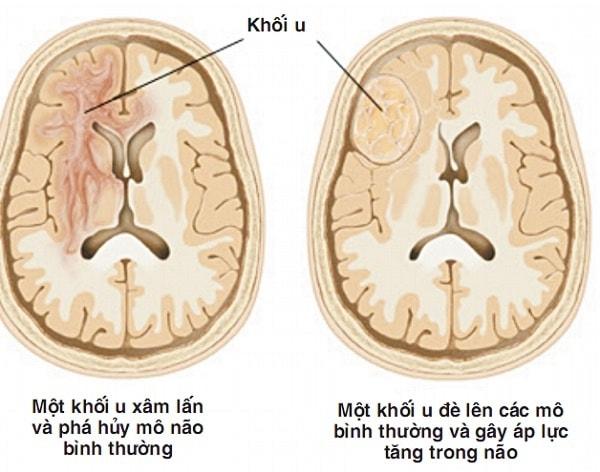 Bệnh u não là gì, có chữa được không 2