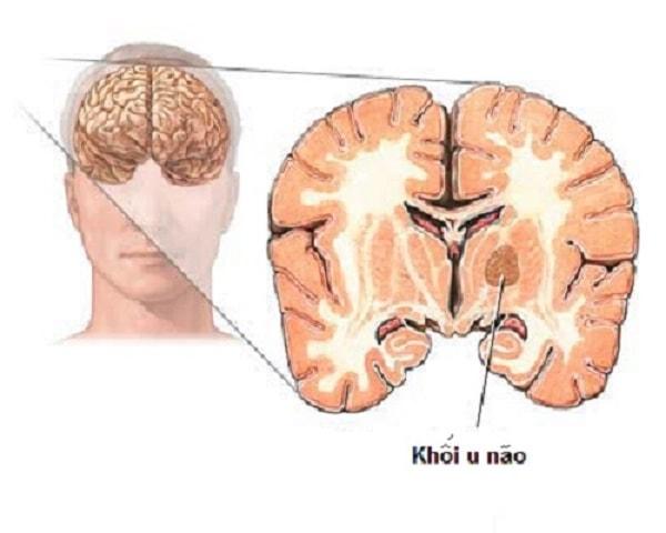 Bị u não có thể sống thêm được bao lâu 1