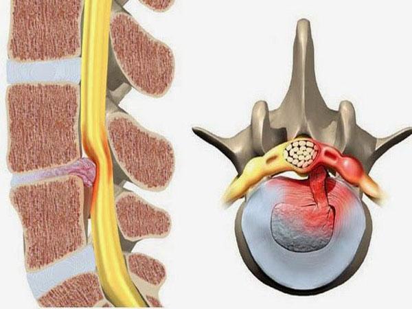 Tìm hiểu về quá trình dẫn tới bệnh thoát vị đĩa đệm 2