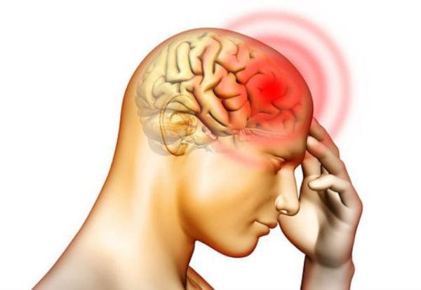 Bệnh u não có lây không 1
